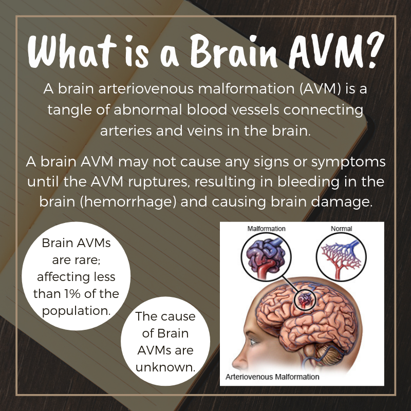 description of a brain avm with a picture of a brain with normal and tangled vessels